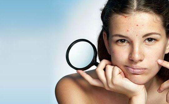 6-best-ways-to-manage-acne