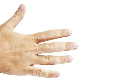 6-ways-to-beat-warts