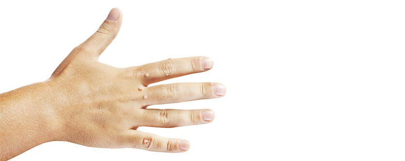 6 Ways to Beat Warts