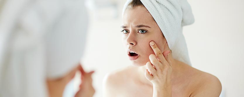 7 Common Culprits that Cause Acne