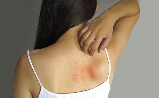 9-tips-to-treat-skin-rashes