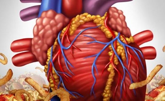 heartburn-say-no-to-oily-foods