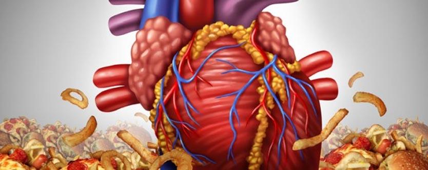 Heartburn-Say No To Oily Foods