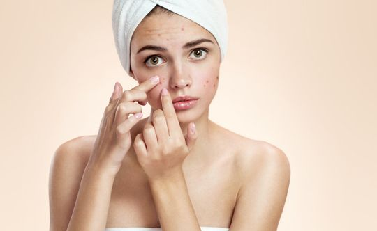 people who can get affected with acne