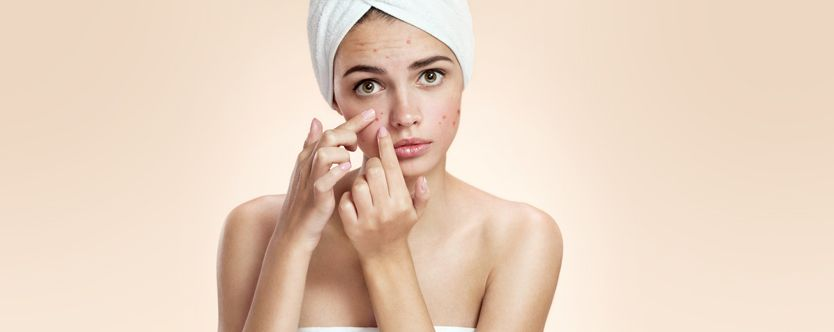 acne-in-your-body-width-834-height-332