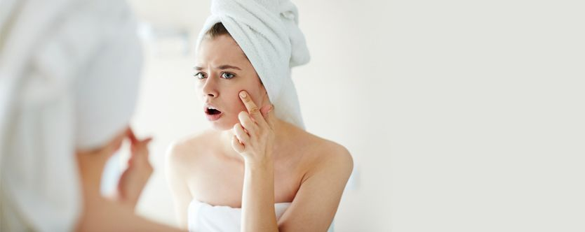 causes-of-acne-width-834-height-332