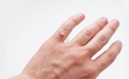causes-of-warts-width-834-height-332
