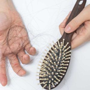 hair-transplant-for-women-hair-loss-300x300