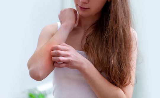 people who can get affected with dermatitis