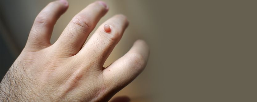 people who can get affected with warts