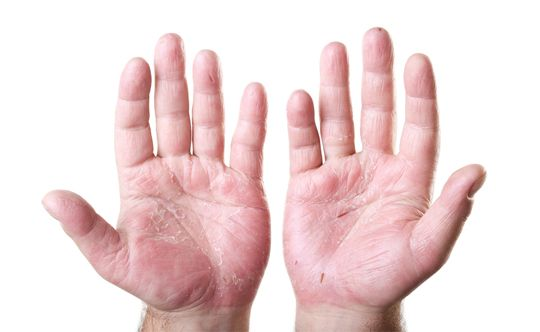 Causes for Psoriasis