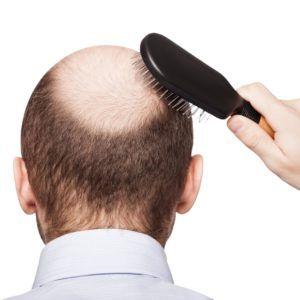shutterstock_bald-300x300