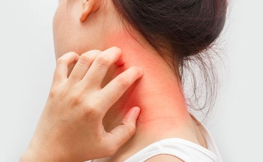 symptoms of dermatitis