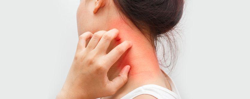 symptoms-of-dermatitis-width-834-height-332