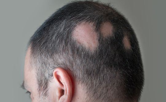 what-is-alopecia-width-834-height-332