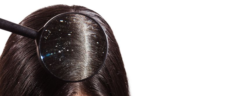 what-is-dandruff-width-834-height-332
