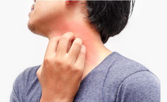 what-is-dermatitis-width-834-height-332