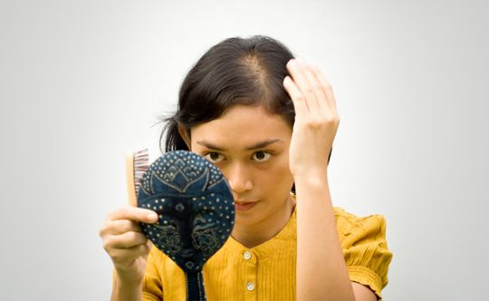 what is female pattern baldness