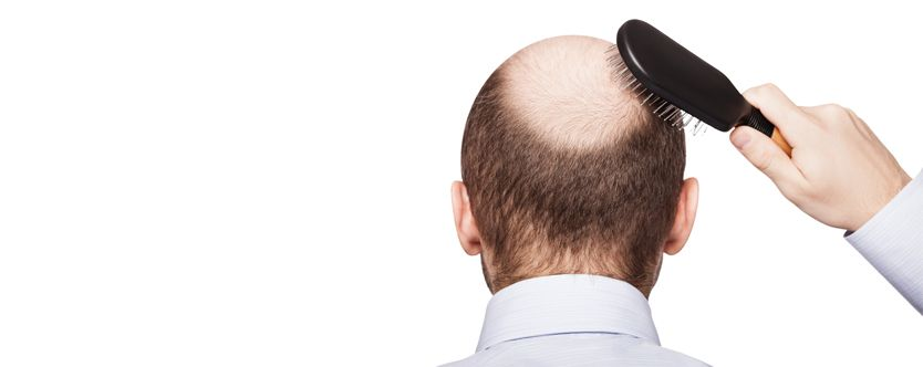 what-is-male-pattern-baldness-width-834-height-332