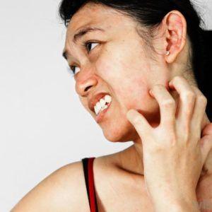 woman-scratching-face-300x300