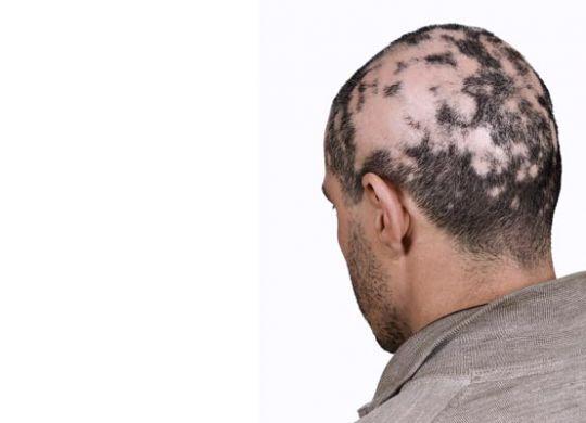 Effective Homeopathy Plan for Alopecia Areata