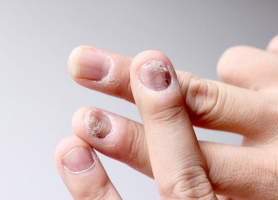 fungal-infections