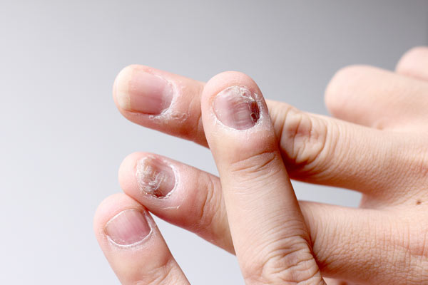 Fungal Infections / Nail Infections