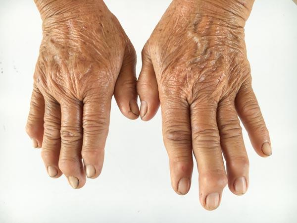 Gout / Arthritis