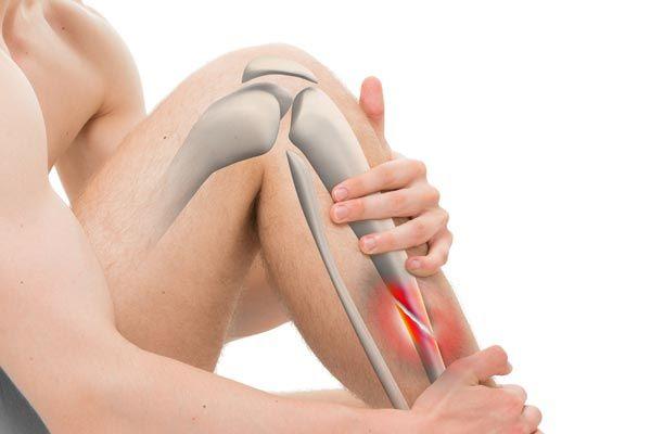 nonhealing-fracture