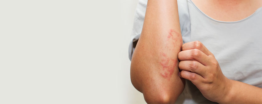 7 Lifestyle Tips to Manage Psoriasis