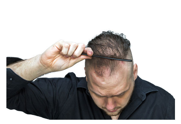 Homeopathy Plan for Androgenetic Alopecia