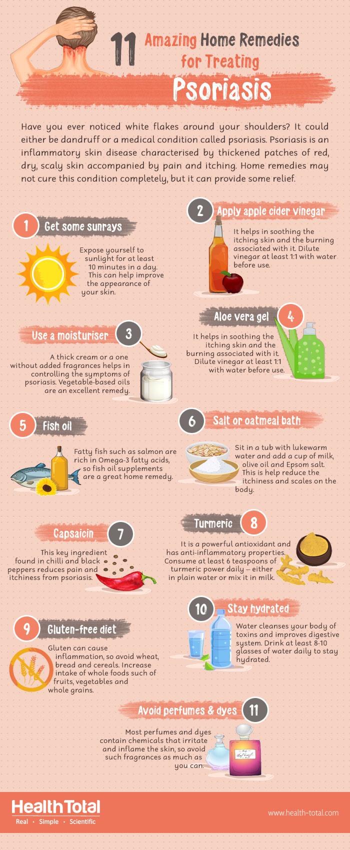psoriasis home remedies