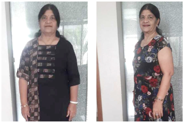 Weight Loss Plan - Manju Agarwal Success Stories