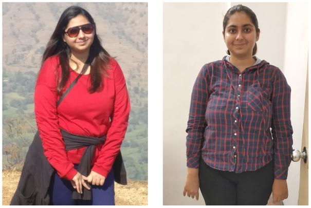 Acidity Diet Plan - Snehal Sharma Success Stories