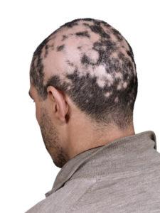 alopecia-225x300.jpg